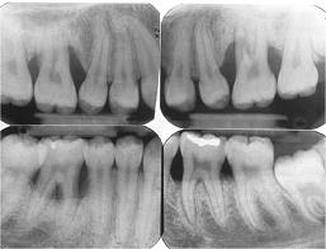 Localized Agressive Periodontitis